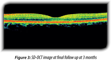At This Time The Visual Acuity Of Left Eye Improved To 20 Through A Thorough Search Literature We Could Find Another Case Report By Mayer Et