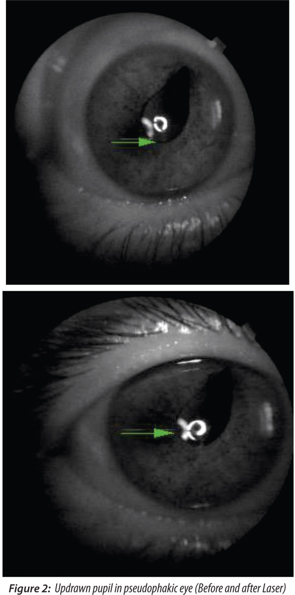 Diode Green Laser Pupilloplasty In Updrawn Pupil After