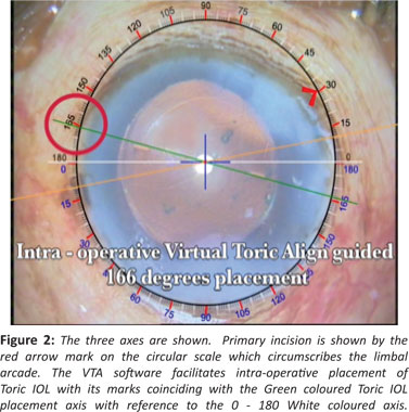 A New System Of Axis Marking For Toric Intraocular Lenses