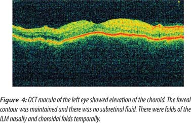 OCT Macula Figure 4 Of The Left Eye Showed Elevation Choroid Foveal Contour Was Maintained And There No Subretinal Fluid Were Folds